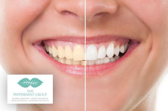 Custom teeth whitening - City Centre
